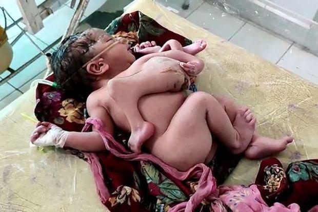 Dörd ayaqlı, üç qollu qız doğuldu - FOTO/VİDEO
